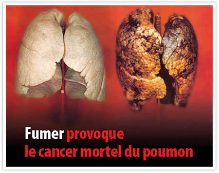 Stop tabac : fumer provoque le cancer